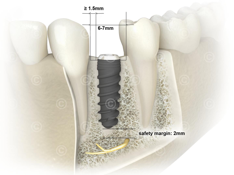 implantat sicherheitsabstaende unterkiefer