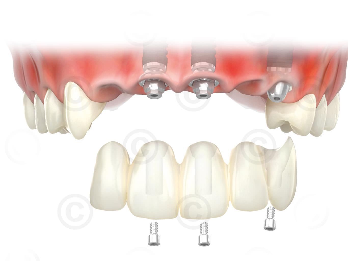 Zahnprothese obere Schneidezähne