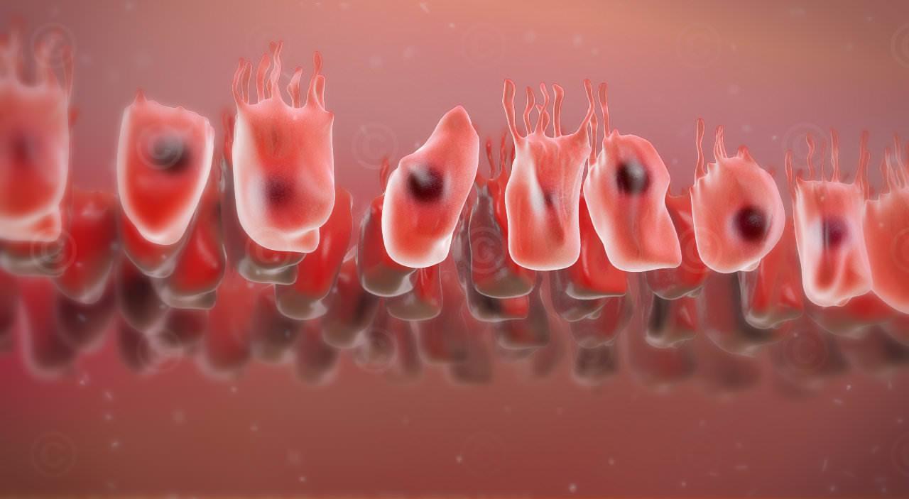 Defekte Zellen Darmwand