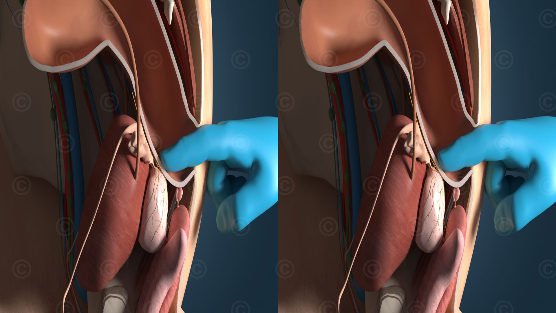 Stereoskopische Animation Prostatakrebs