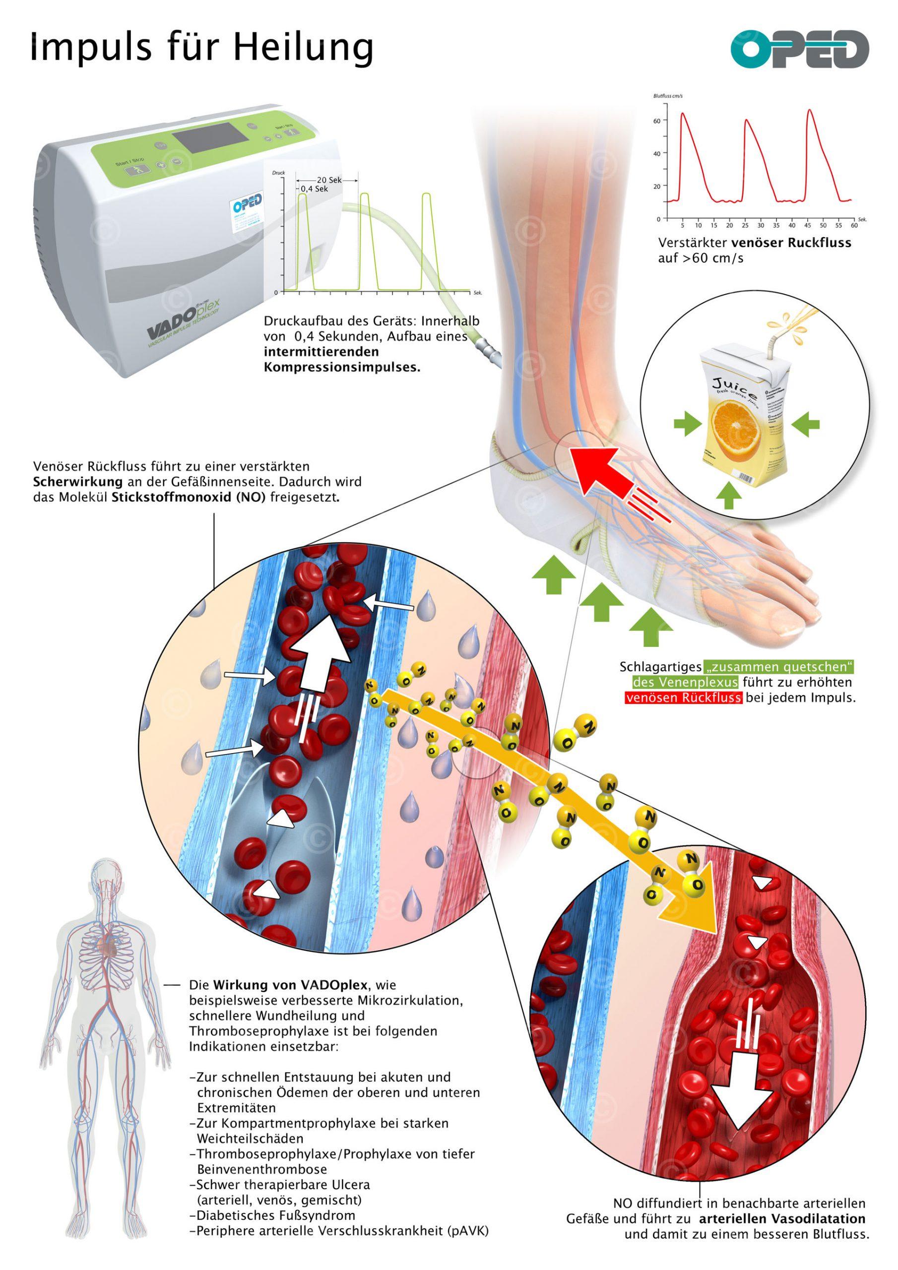 Infografik medizinisches Gerät