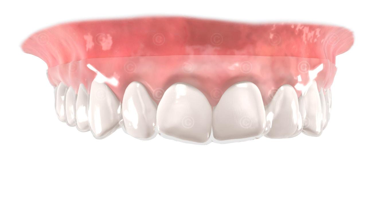 Aligner Dental